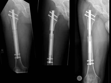 PRECISE Remote-Controlled Leg Lengthening System
